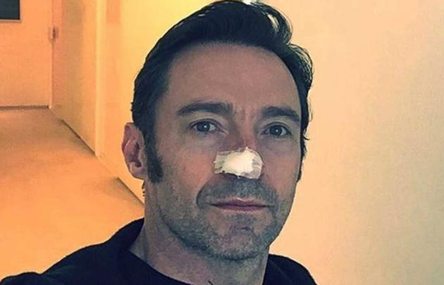 Hugh Jackman fue tratado nuevamente por cáncer