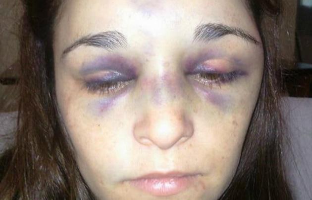 Murió la mujer de 31 años golpeada por su novio de 17