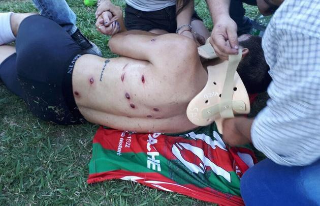 Brutal represión policial en una liga de Santa Fe